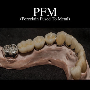pfm-feature-1